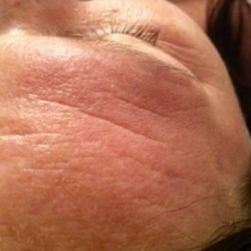 Before Microdermabrasion